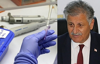 Kuzey Kıbrıs'ta dün bin 560 test yapıldı