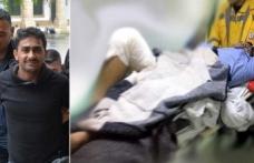 Silah aniden patladı iki polis yaralandı